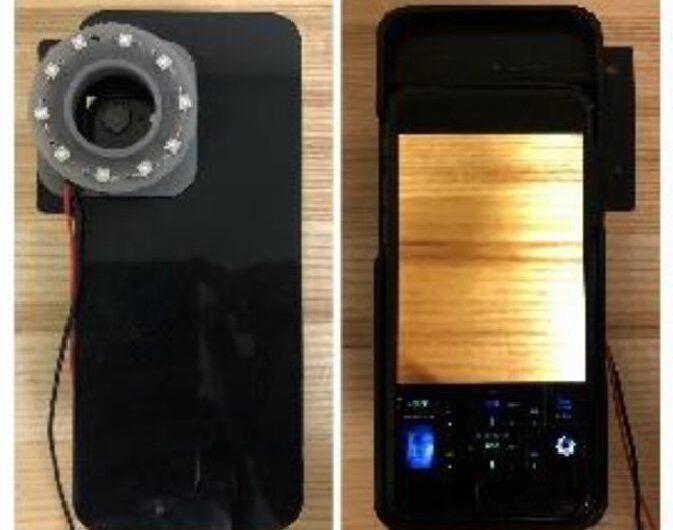 La caméra du smartphone peut éclairer les bactéries causant l'acné, les plaques dentaires